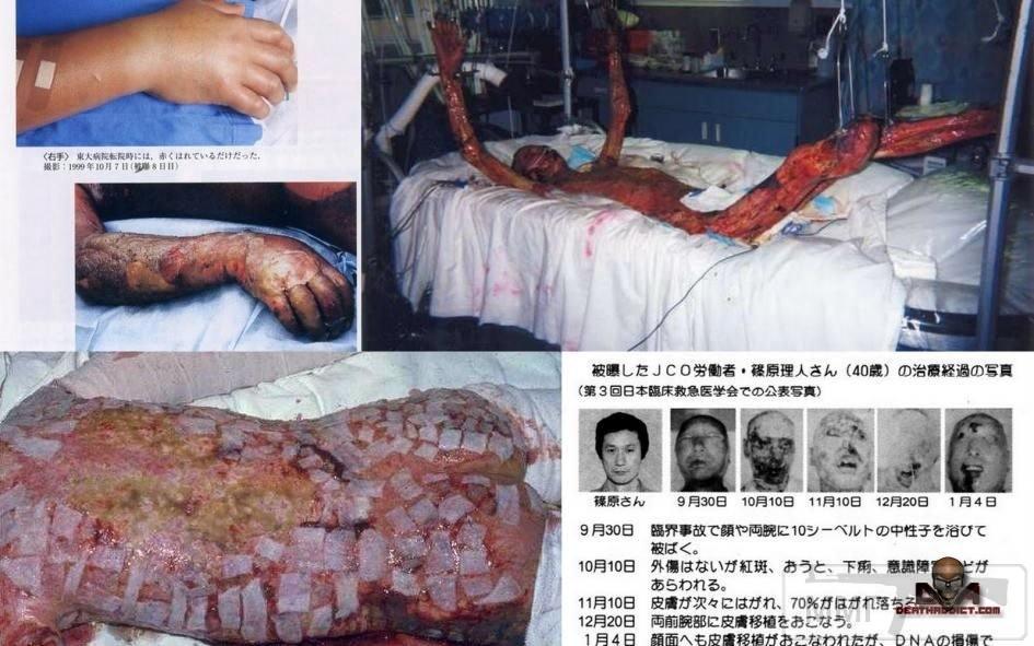 110470 - Авария в Токаймуре: самая мучительная смерть в истории