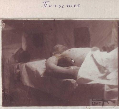14331 - Военно-полевая хирургия