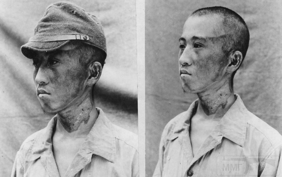 3159 - Этот пациент (снимок сделан японскими военными 3 октября 1945 года) находился примерно в 1 981,20 м от эпицентра, когда радиационные лучи настигли его слева. Кепка защитила часть головы от ожогов. (U.S. National Archives)