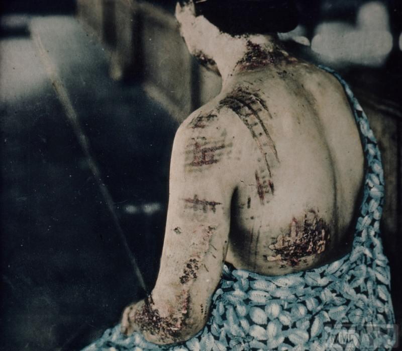 79387 - Хиросима и Нагасаки